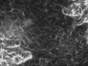Blutdiagnostik im Dunkelfeld-Mikroskop in der Naturheilpraxis Sandra Jung - Heilpraktikerin in Simmern